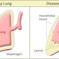 Cases of Mesothelioma