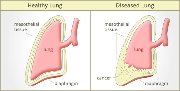 Cases of Mesothelioma